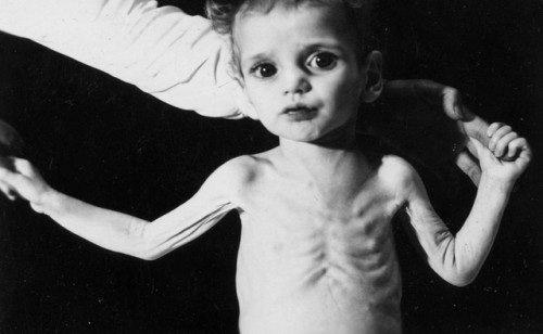 Trẻ bị nhiễm độc chì